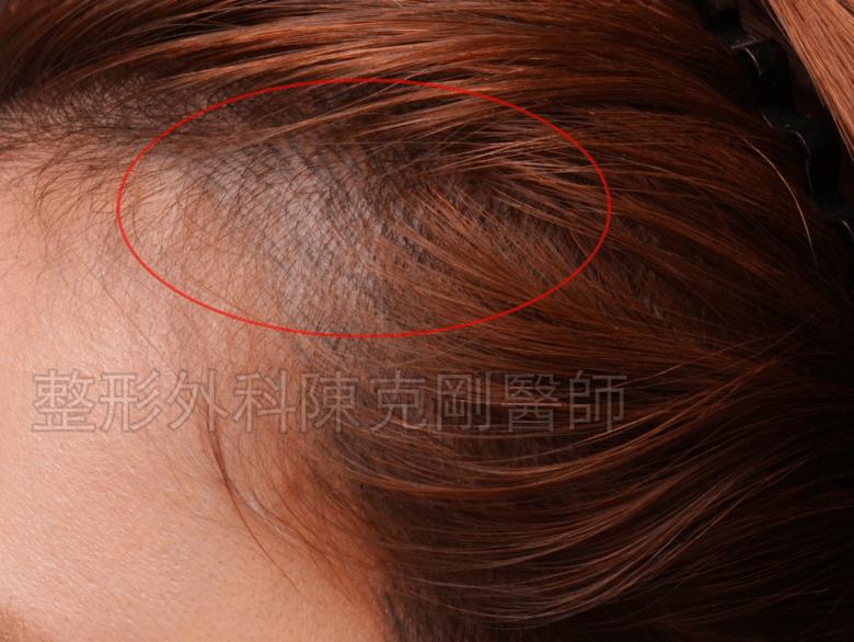 女性 髮際線紋繡 變藍色