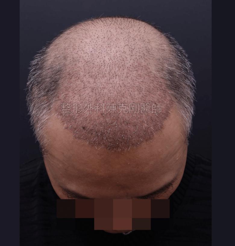 禿頭植髮第一次 術後三週
