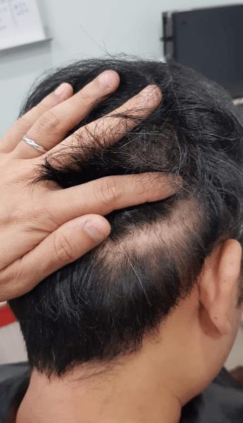 割頭皮超過一公分的疤痕