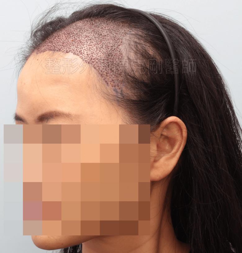 放射線治療後落髮 植髮當日術後 側面