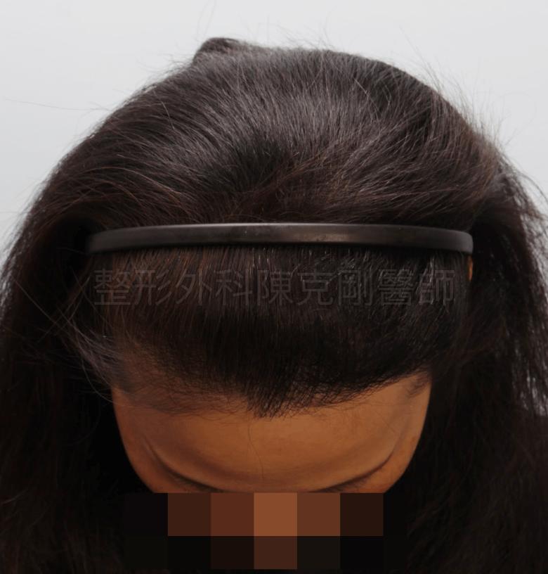 放射線治療後落髮 植髮術後一年 低頭