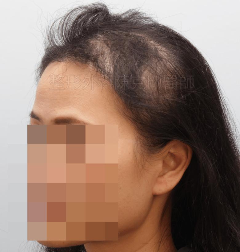 放射線治療後落髮 植髮半年術後 側面