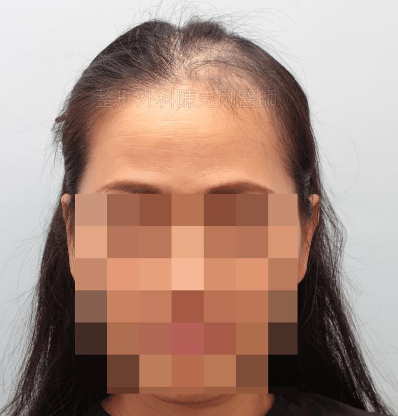 放射線治療後落髮 植髮術前 正面