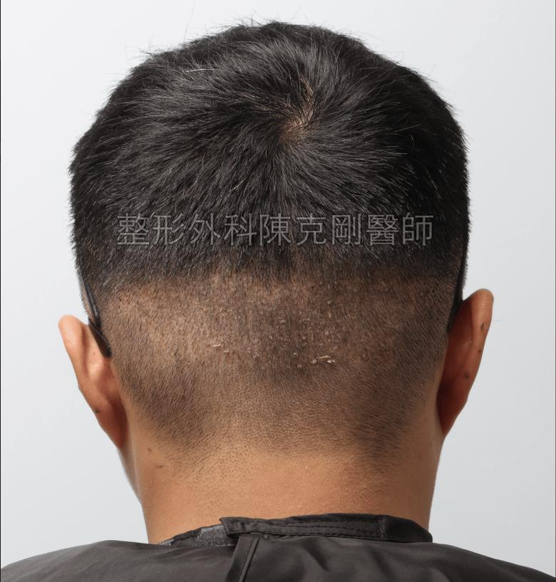 髮線植髮取髮區術後一週