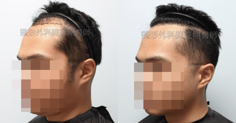 髮線植髮左側比較