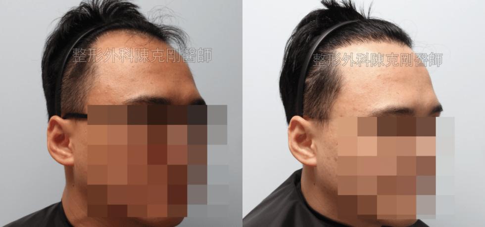 M型禿植髮右側比較