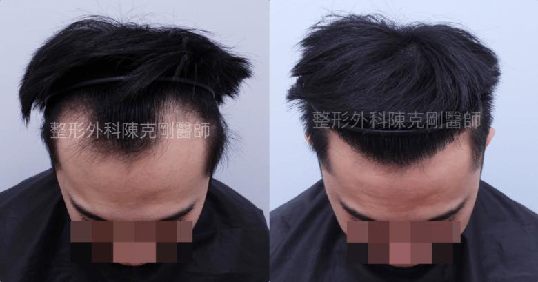 高密度髮線植髮術後六個月低頭比較