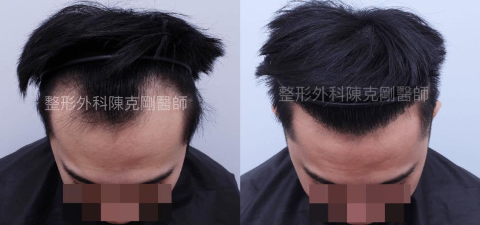 高密度髮線植髮密度術後六個月低頭比較