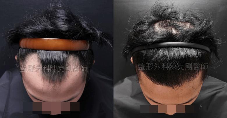M型禿髮線植髪低頭比較
