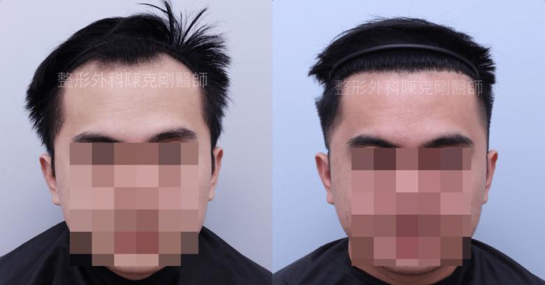 高密度髮線植髮六個月正面比較