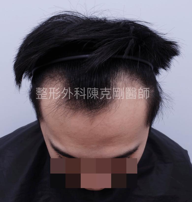 高密度髮線植髮術前低頭