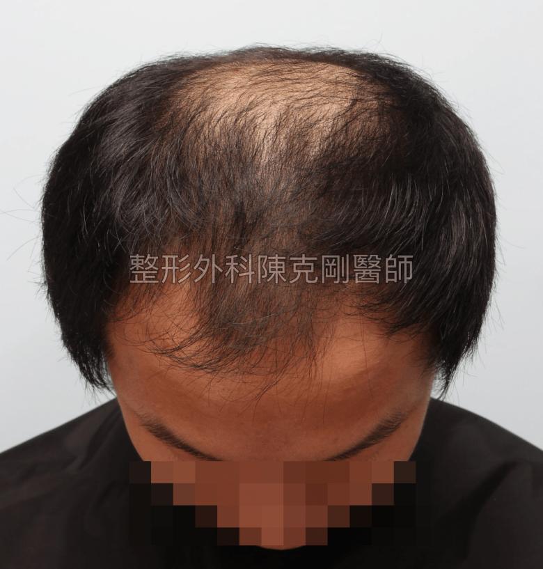 FUE巨量植髮低頭術前