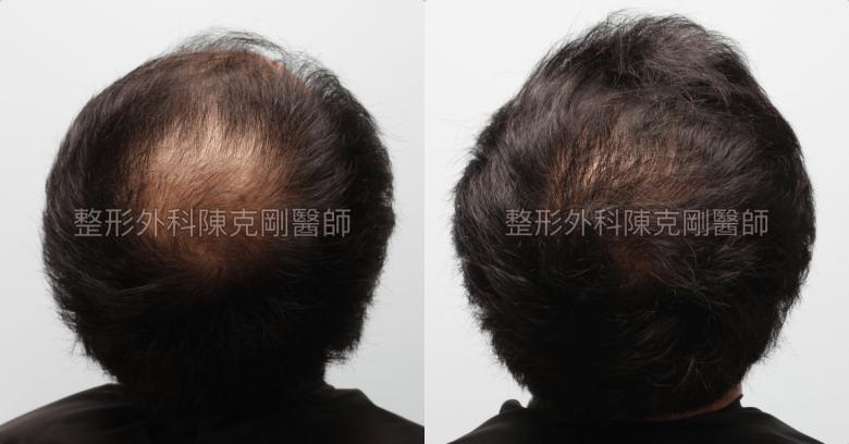 FUE巨量植髮髮旋比較