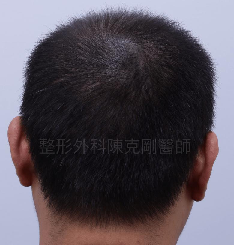 頭皮紋繡巨量植髮術前後腦