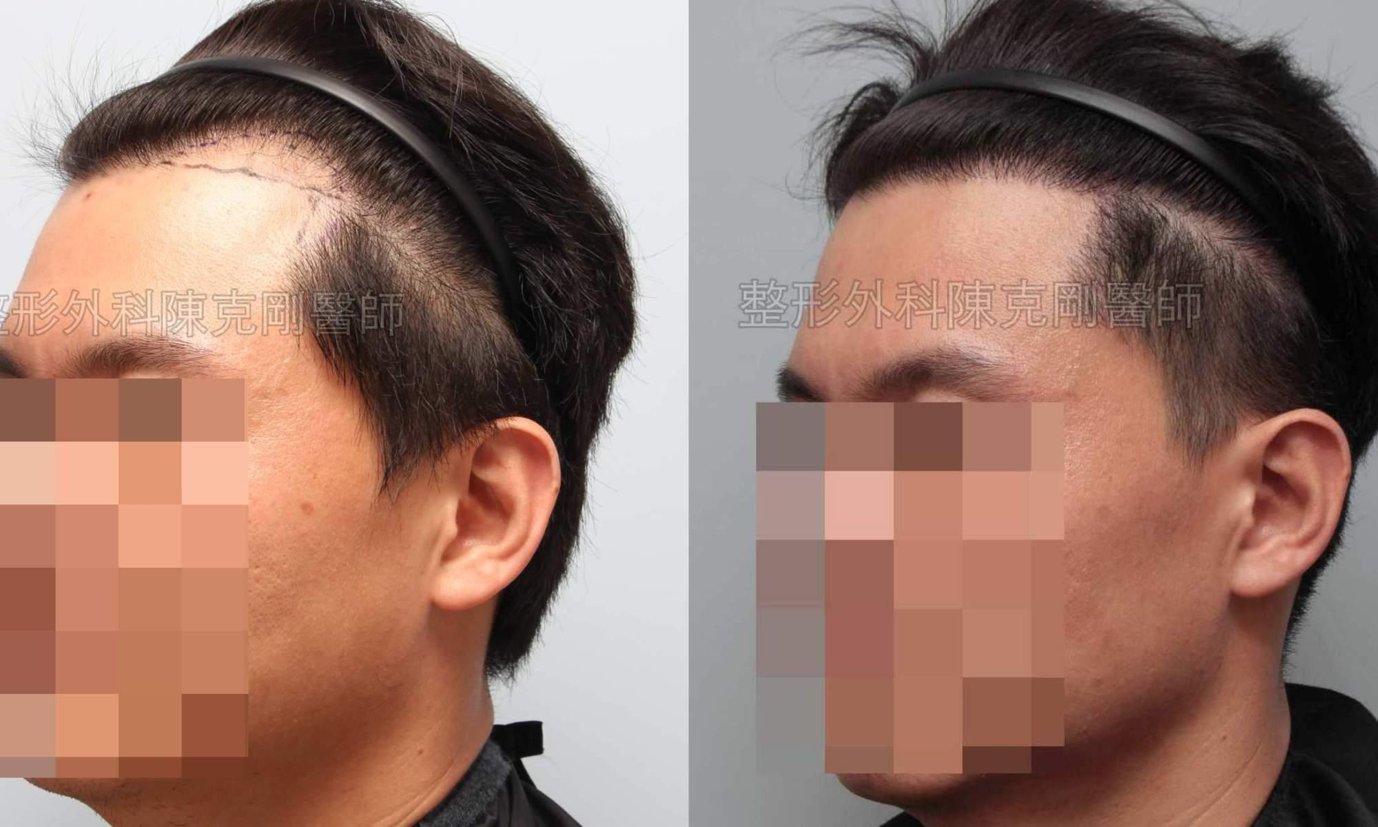 男性髮線植髮左側比較
