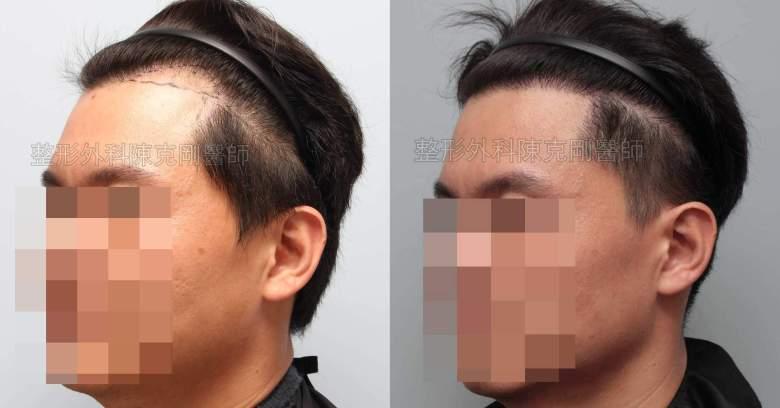 FUE男性髮線植髮左側比較