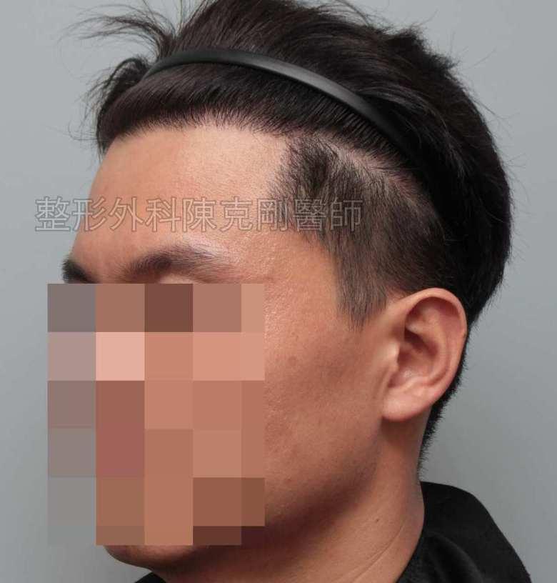FUE男性髮線植髮左側術後六個月