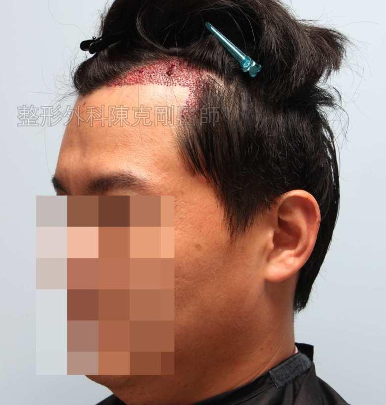 FUE髮線植髮右側術後立即