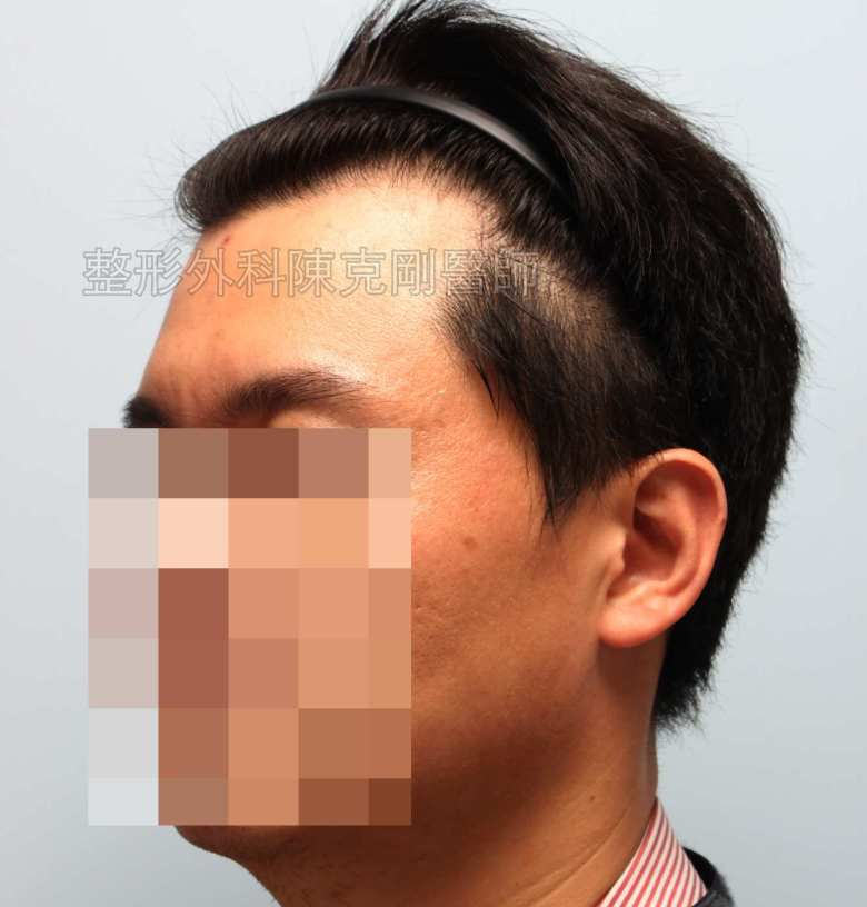 FUE髮線植髮左側術前