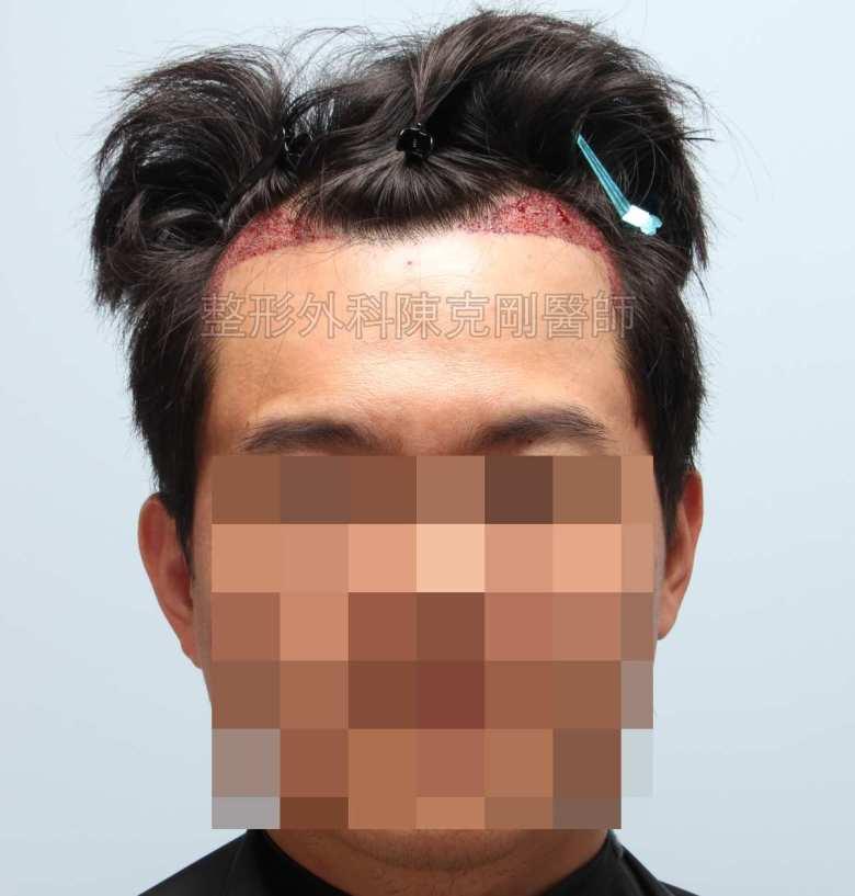FUE髮線植髮術後立即正面