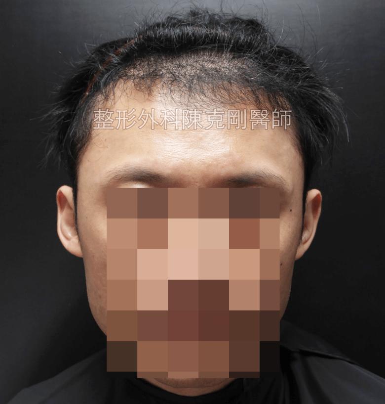植髮六個月生長