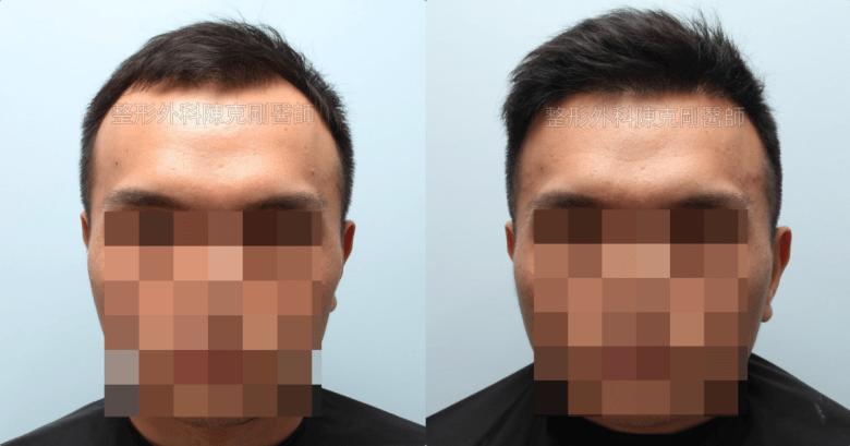 植髮治療髮線後退改善髮量正面比較