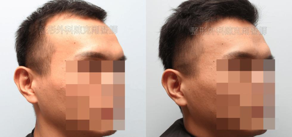 植髮治療髮線後退改善髮量 右邊比較