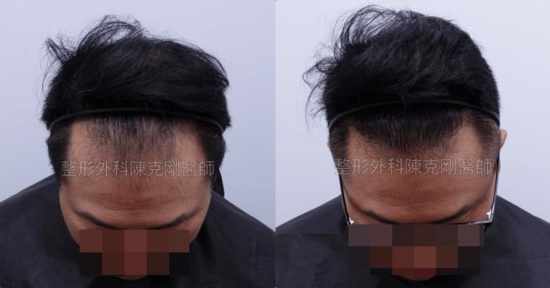 地中海禿頭植髮低頭術後一年比較