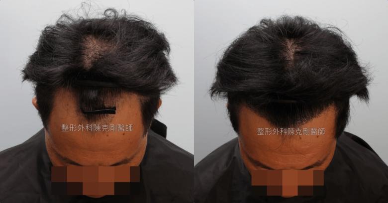 髮線後退植髮低頭術後半年比較