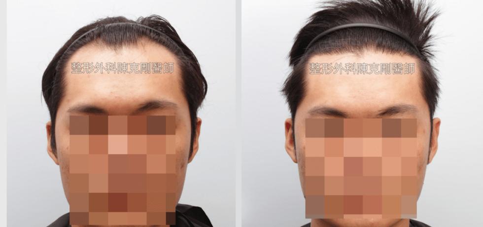 免剃植髮分層剃髮正面術後一年比較