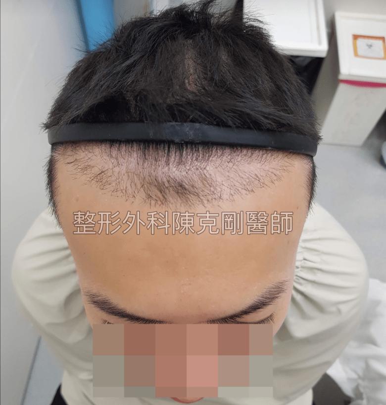 ARTAS植髮失敗二次植髮重修案例低頭術前特寫