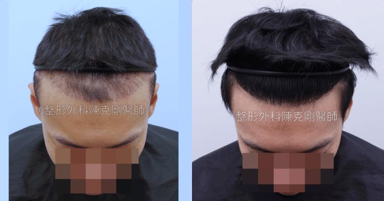 ARTAS植髮機器人失敗二次植髮重修案例低頭術後半年比較