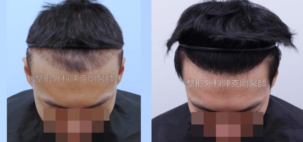 ARTAS植髮失敗二次植髮重修案例低頭術後半年比較