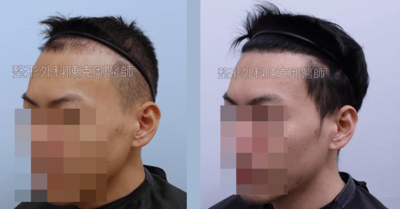 ARTAS植髮失敗二次植髮重修案例左側術後半年比較