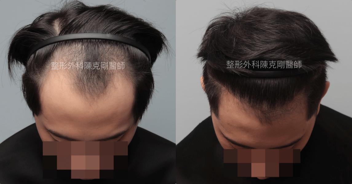 巨量植髮合併醫學生髮低頭術後六個月比較