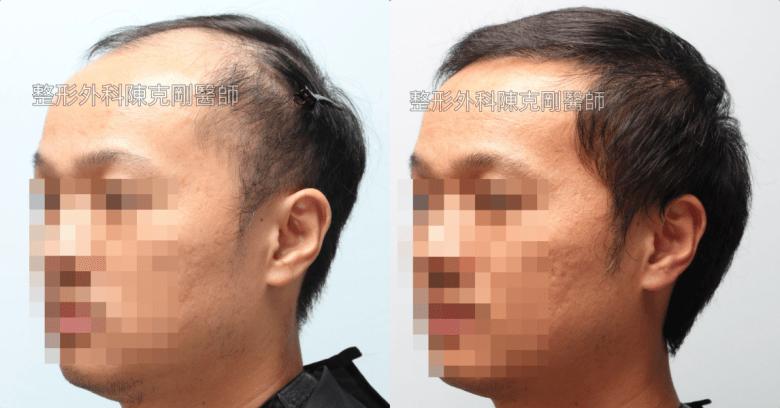高密度巨量植髮 一次達標頭髮年齡年輕十歲 植髮左側術後半年比較