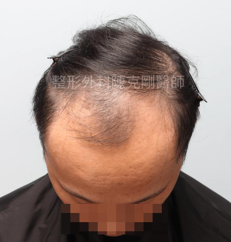 FUE高密度巨量植髮 一次達標頭髮年齡年輕十歲 植髮術前低頭