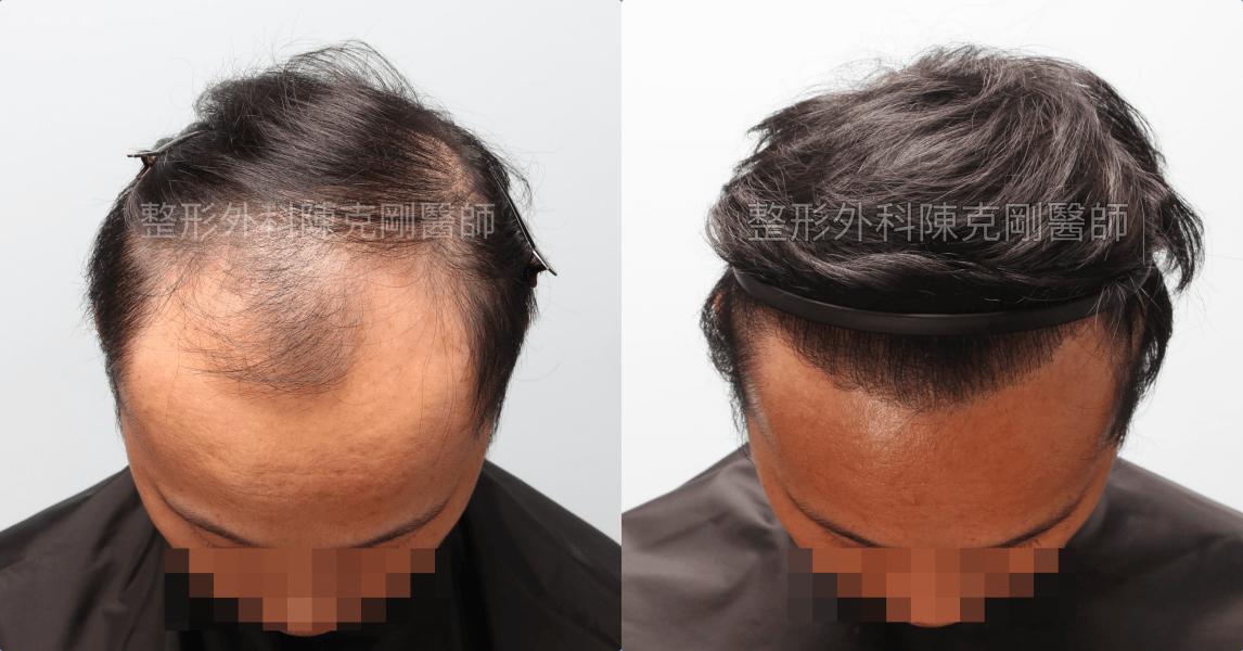 高密度巨量植髮 一次達標頭髮年齡年輕十歲 植髮術後六個月低頭比較