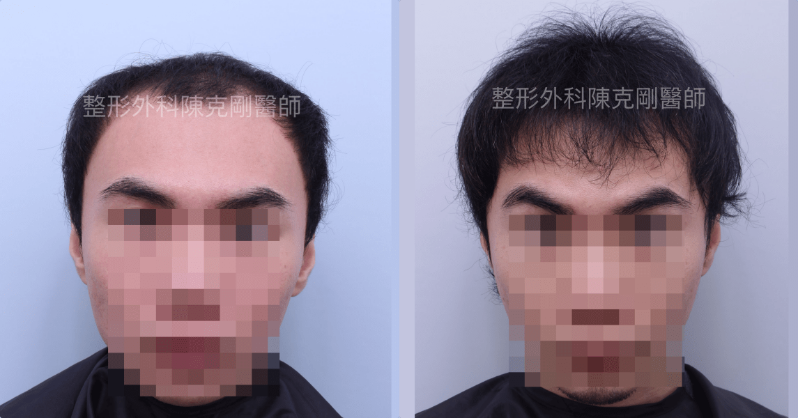 FUE巨量植髮讓您頭髮再度茂密 半年可看到效果 植髮手術後半年比較