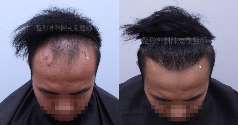 前額FUE巨量植髮 陳克剛醫師台中植髮案例分享 術後九個月低頭髮線比較