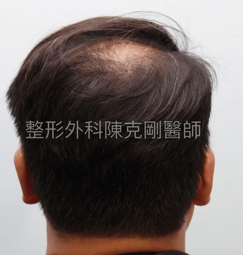 FUT植髮失敗後巨量植髮重修後腦術前