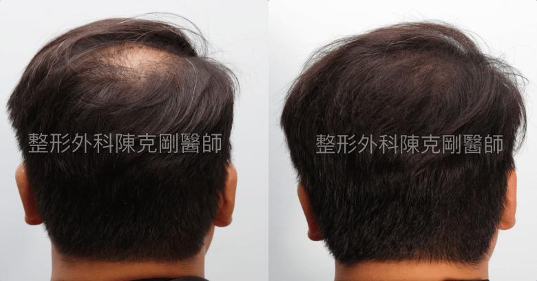 FUT植髮失敗後巨量植髮重修後腦術後十一個月比較