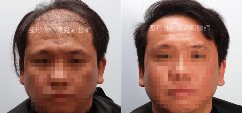FUT植髮失敗後巨量植髮重修正面術後十一個月比較
