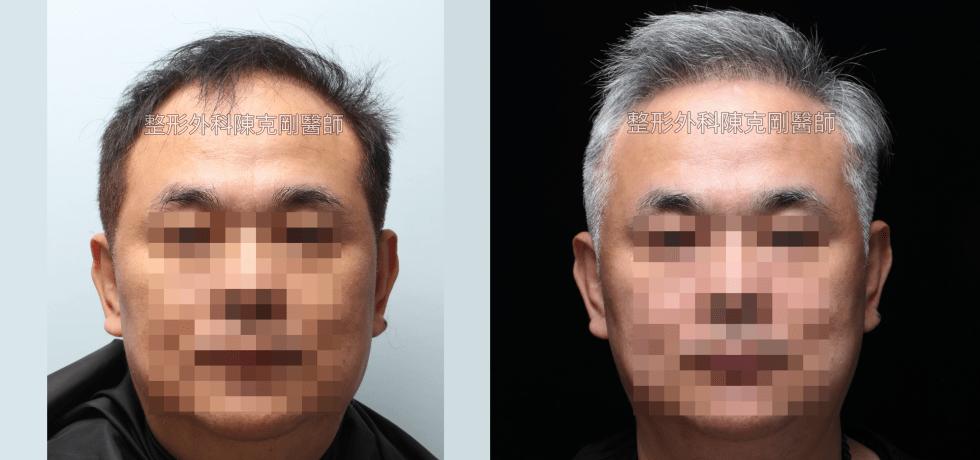 植髮專家陳克剛醫師髮際線白髮植髮案例分享 植髮手術後六個月正面比較