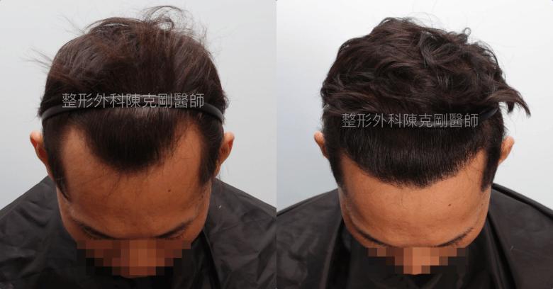 髮線後退植髮 陳克剛醫師高雄植髮案例分享 植髮手術術後一年低頭比較
