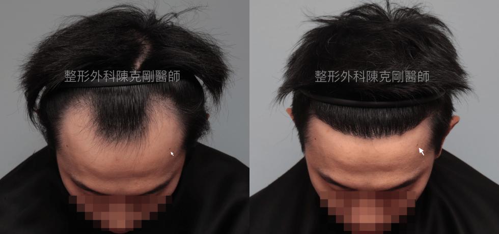 M型禿髮線後退植髮 陳克剛醫師台北植髮案例 植髮手術後半年低頭髮線比較