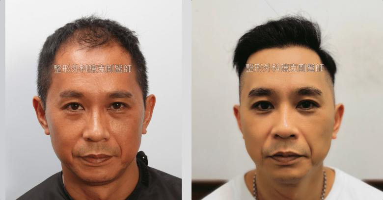 前額植髮 髮線額頭年輕化 台灣植髮專家陳克剛醫師案例分享 植髮手術後九個月正面比較