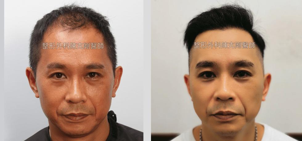前額植髮 髮線額頭年輕化 高雄植髮專家陳克剛醫師案例分享 植髮手術後九個月正面比較