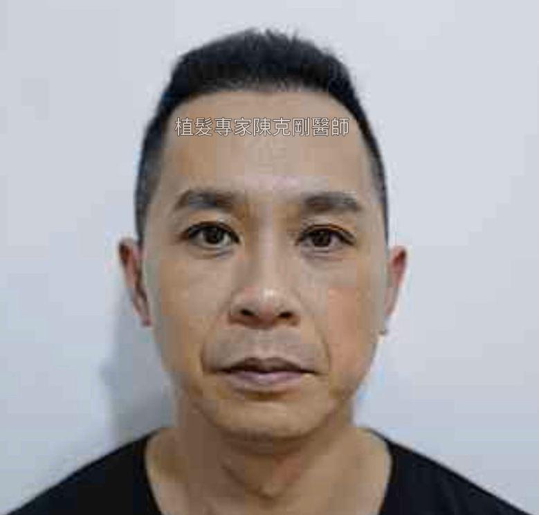 前額植髮 髮線額頭年輕化 台灣植髮專家陳克剛醫師案例分享 植髮手術後六個月正面