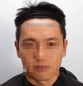 天生高額頭植髮 高雄植髮專家陳克剛醫師案例分享 植髮手術後五個半月正面